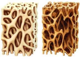 پاورپوینت پوكی استخوان osteoprosis